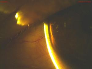 Figure 3. One day after instillation of tropicamide OD, Von Herrick grade was improved.