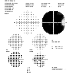 Figure 4B. Humphrey 30-2 visual field test showing significant glaucomatous field loss OD. Click to enlarge