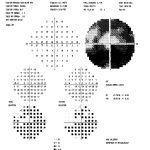 Figure 4A. Humphrey 30-2 visual field test showing significant glaucomatous field loss OS. Click to enlarge