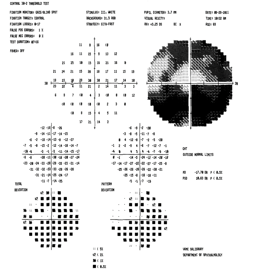 thesis on glaucoma Glaucoma is five times more common in people of african-american descent than in caucasians, and is the leading cause of blindness among african americans unfortunately, 10% of glaucoma patients who receive proper  gdd under development in this thesis focuses mainly on the passively driven approach the gdd should have.