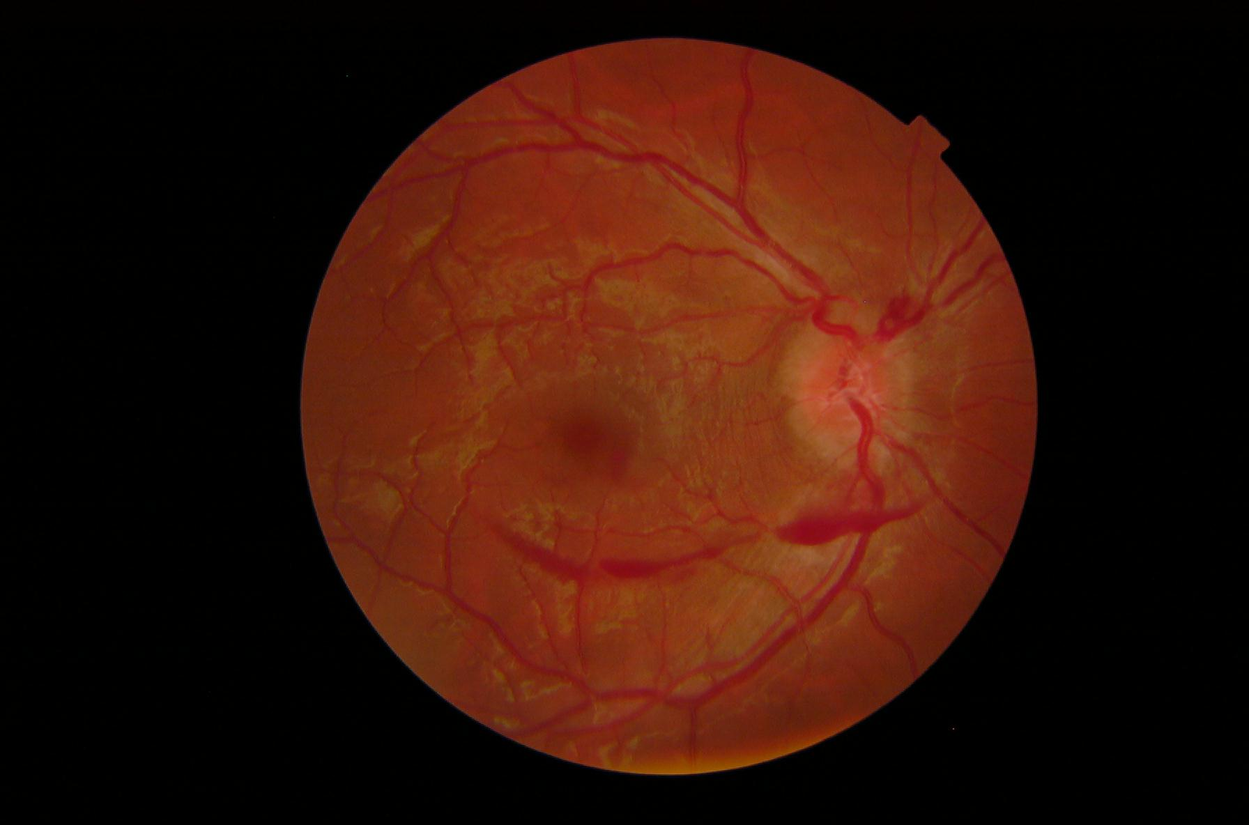 Cerebral Venous Sinus Thrombosis Signaled By Bilateral Optic Disc