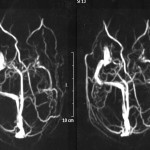 Figure 2. Magnetic resonance venography images showing acute thrombosis of the left transverse and sigmoid sinuses. Click to enlarge