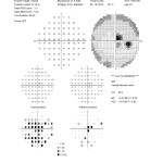 Figure 1A. SITA Standard 30-2 Humphrey Visual Field testing from the initial visit in February 2011 shows central scotoma OD. Click to enlarge