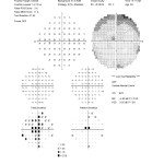 Figure 1B. SITA Standard 30-2 Humphrey Visual Field testing from the initial visit in February 2011 shows central scotoma OS.Click to enlarge