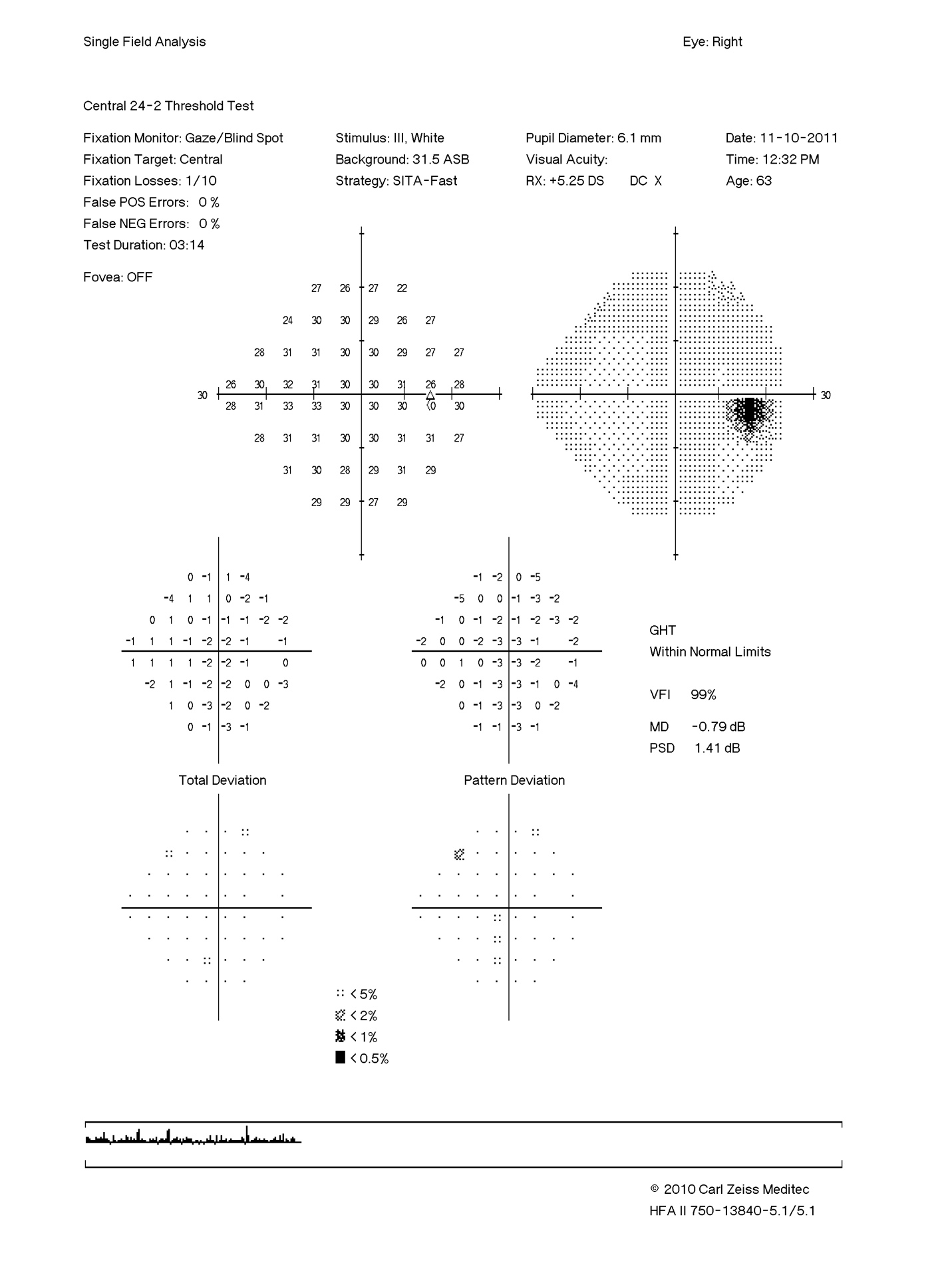 Vitamin B12 Deficiency Optic Neuropathy a Teaching Case Report
