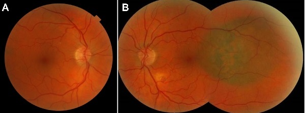 Optometric education volume 42 number 3 summer 2017 a 65 year old caucasian male presented for a comprehensive eye examination in april 2013 with a fandeluxe Choice Image