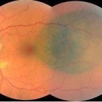 Figure 5. Fundus photography OS nine months following initial presentation. Click to enlarge