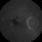 Figure 10. Fluorescein angiography OD at 7:25 showing a late-phase ill-defined area of leakage superior-nasal to the fovea. Click to enlarge